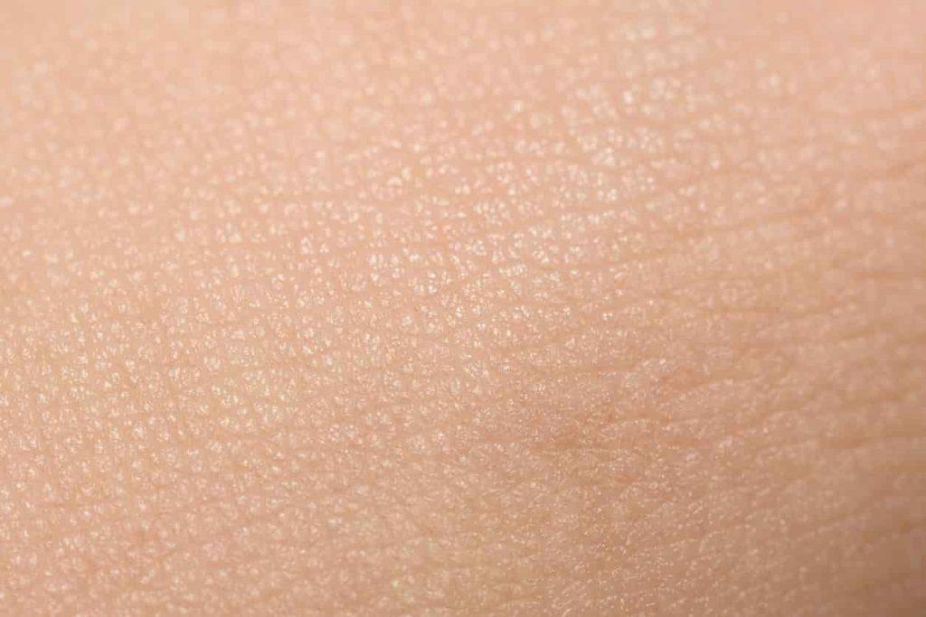 Types of sunburn healthy skin